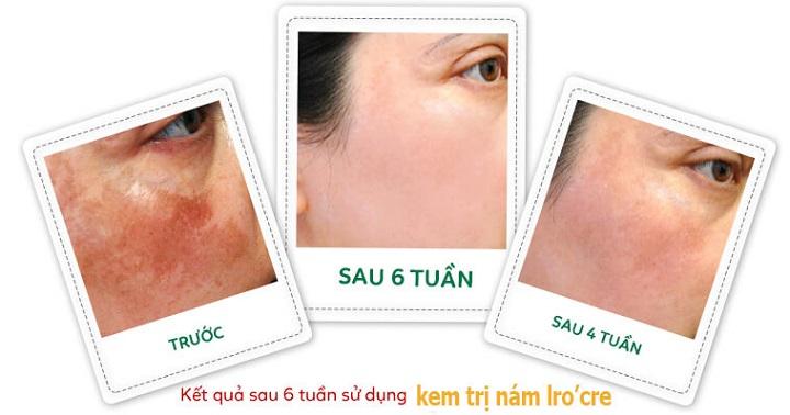 Kem Dưỡng Trắng Sáng Da Ngăn Ngừa Thâm Nám Tàn Nhang Lro'cre (Kem Bel)